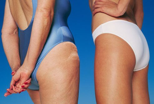 Cellulite Pictures Slideshow: Causes, Myths and Treatments