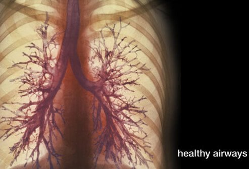COPD Stages, Symptoms, Emphysema, Bronchitis