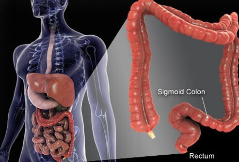 Colorectal Cancer (Colon Cancer): Symptoms, Signs, Screening, Stages, and Treatment Options