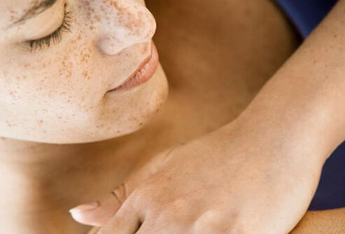 Rosacea, Acne, Shingles: Common Adult Skin Diseases