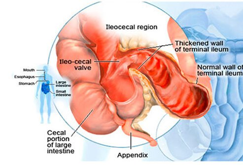 Crohn's Disease Pictures Slideshow: Symptoms, Causes and Treatment
