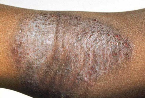 eczema types, treatment, home remedies & symptoms, Skeleton