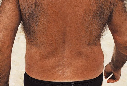 Men's Health: Dealing With Body Odor, Sweating, Back Hair, & More