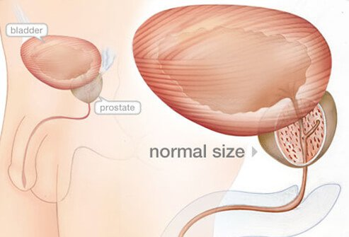 Enlarged Prostate (BPH) Pictures Slideshow: Symptoms, Diagnosis & Treatment