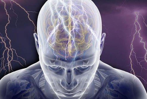 epilepsy (seizures): learn about facts and treatments, Skeleton