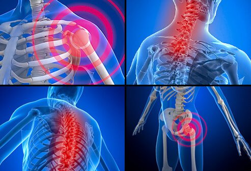 Fibromyalgia Symptoms, Diagnosis & Treatment
