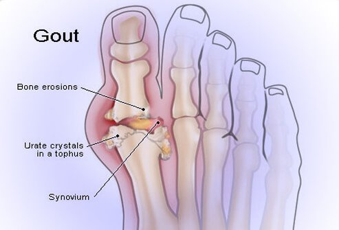 Gout Attack Symptoms, Causes, Treatment, and Diet