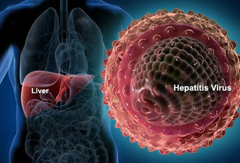 Hepatitis C, Hep B, Hep A: Symptoms, Causes, Treatment