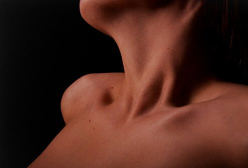 Hyperthyroidism Symptoms and Treatment