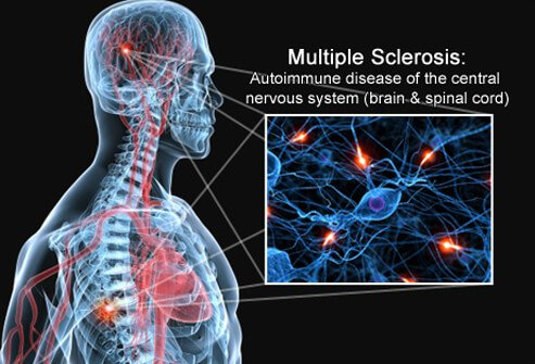 Multiple Sclerosis Pictures Slideshow: Causes, Symptoms and Treatment