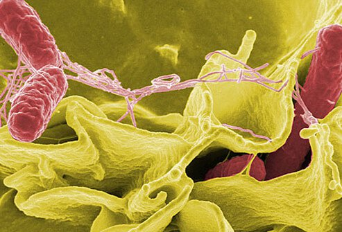 Salmonella Food-Poisoning Pictures: Salmonella Food Sources, Symptoms, and Treatment