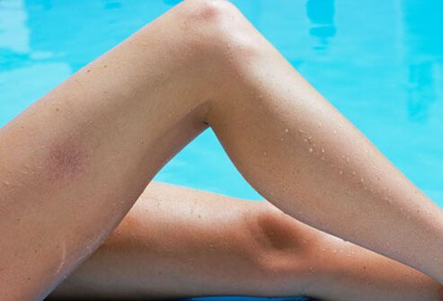 Spider and Varicose Veins Pictures: Causes, Before-and-After Treatment Images