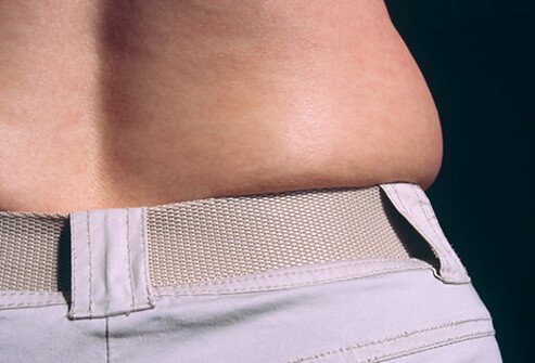 Weight Gain Shockers Pictures Slideshow: Surprising Reasons You're Gaining Weight