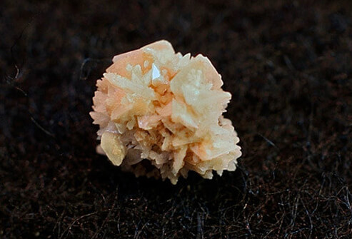 Picture of Kidney Stone Crystal