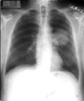 Media file 1: The chest X-ray shows a shadow in the left lung, which was later diagnosed as lung cancer.
