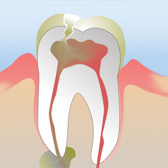 Tooth Abscess Complications