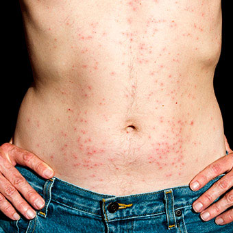 Home remedies for skin rashes Home remedies for skin rashes new foto