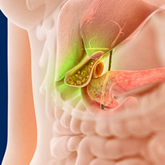 gallbladder pain: relief, symptoms, treatment & diet, Human body