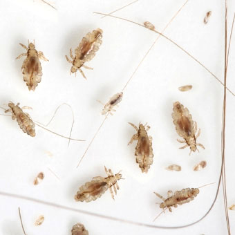 I'VE HAD ADULT LICE! Here's What To Do If It Happens to You