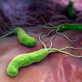 H pylori helicobacter pylori infection symptoms treatment causes how does a person - Bacterie helicobacter pylori ...