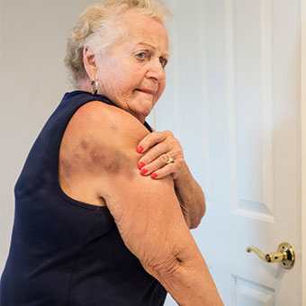 A senior woman examining her large shoulder hematoma in the mirror.