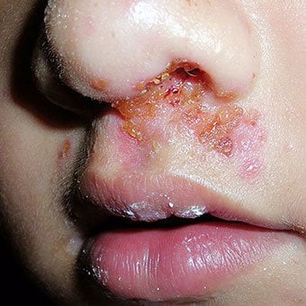 impetigo treatment, causes, symptoms, and pictures, Cephalic Vein