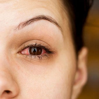 Pink Eye - Pictures, Symptoms, Treatment, Contagious ...