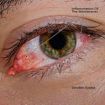 pink eye overview - WebMD