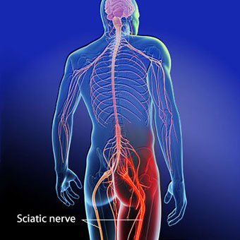 sciatica symptoms, treatment, causes - what is sciatica? - medicinenet, Skeleton