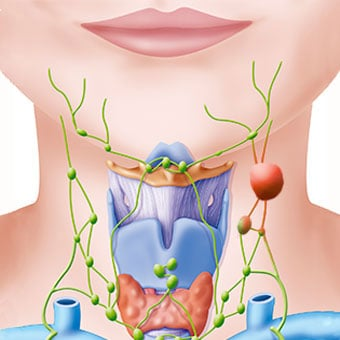 how to tell lymph nodes swollen