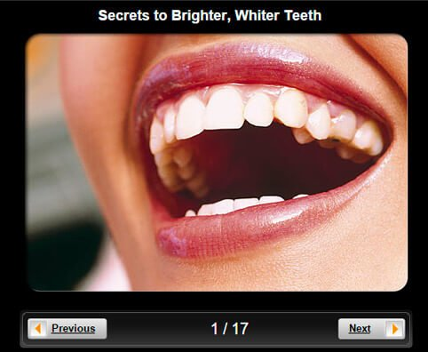 Dental Health: 10 Secrets to Brighter, Whiter Teeth Pictures Slideshow