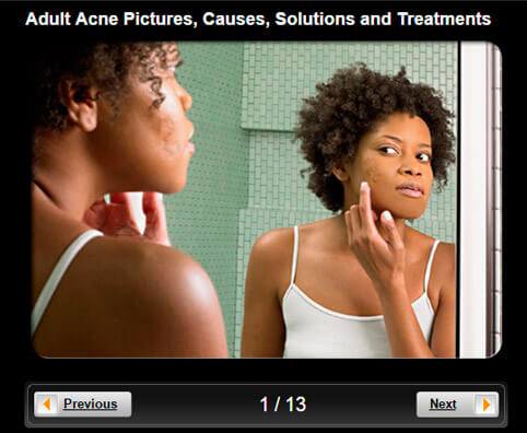Acne Pictures Slideshow: Causes, Solutions and Treatments for Adults
