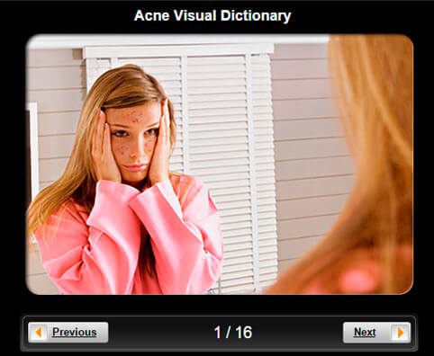 Acne Pictures Slideshow: A Visual Dictionary