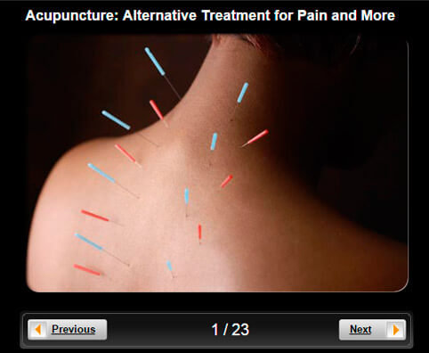 Slideshow Pictures: Acupuncture - Alternative Treatment for Pain and Other Conditions