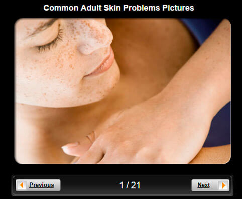 Skin Pictures Slideshow: Adult Skin Problems