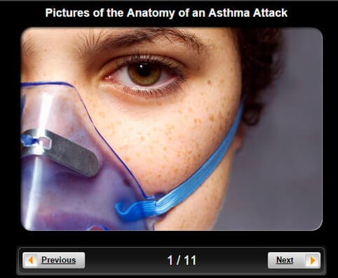 Asthma Pictures Slideshow: The Anatomy of an Asthma Attack
