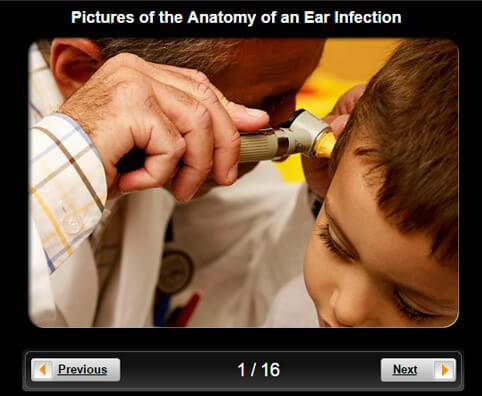 Anatomy of an Ear Infection Pictures Slideshow: Causes, Diagnosis, and Treatment