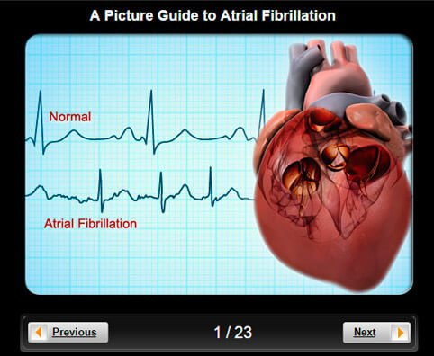 Atrial Fibrillation Pictures Slideshow: Visual Guidelines to Causes, Tests and Treatment