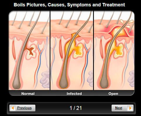 Boils Pictures Slideshow: Causes, Symptoms and Treatment