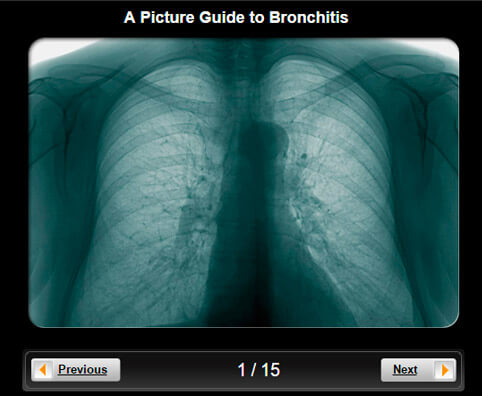 Bronchitis Pictures Slideshow