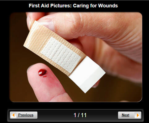 First Aid Pictures Slideshow: Caring for Wounds