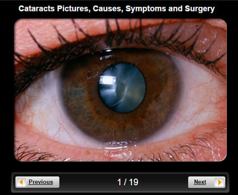Cataracts Pictures Slideshow: A Visual Guide to Causes, Symptoms and Surgery