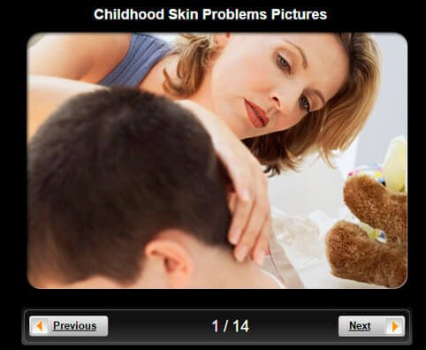 Skin Pictures Slideshow: Childhood Skin Problems