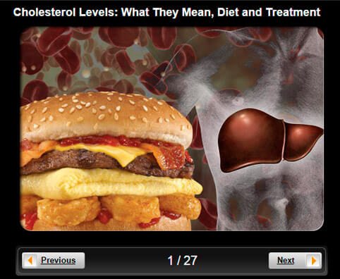 Cholesterol Levels Pictures Slideshow: What They Mean, Diet and Treatment