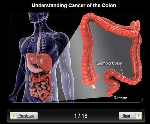medical definition of colon cancer, Human Body