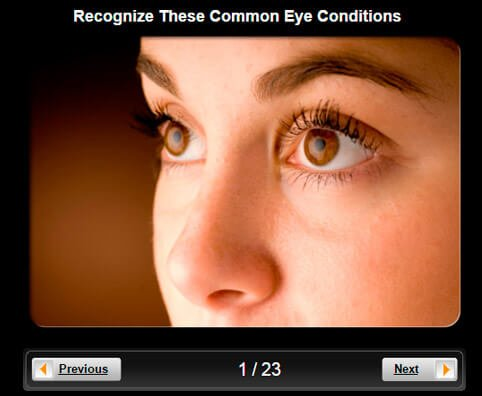 Eye Problems Pictures Slideshow: Recognize These Common Eye Conditions