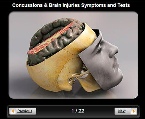 Concussions & Brain Injuries Pictures Slideshow: Symptoms, Tests & Treatment