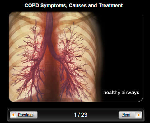 COPD Pictures Slideshow: Symptoms, Causes & Treatment