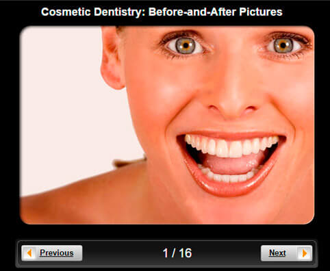 Cosmetic Dentistry Pictures Slideshow: Before and After
