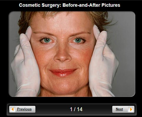 Cosmetic Surgery Slideshow: Before and After Pictures